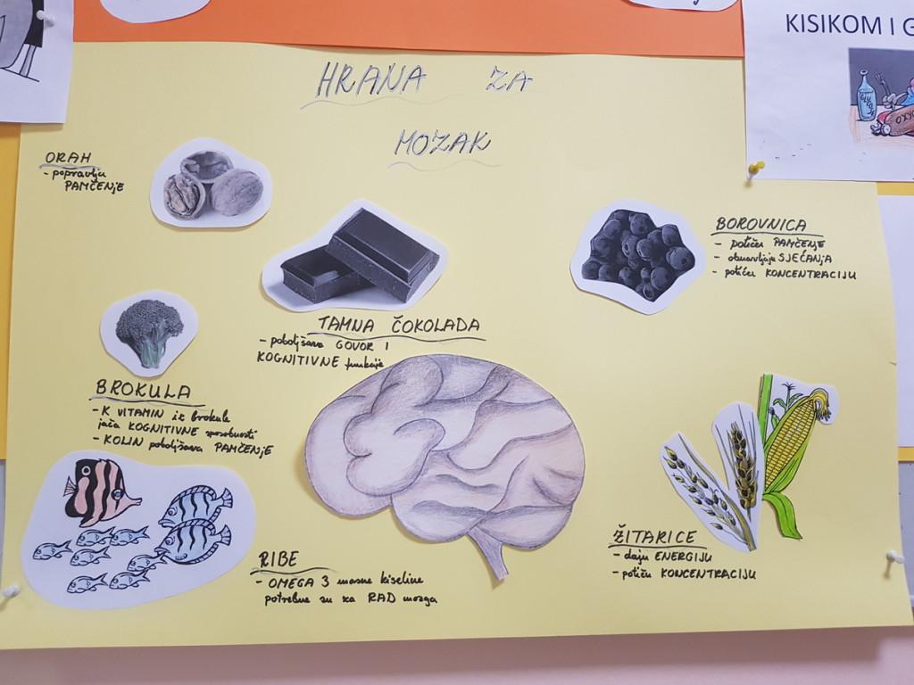 mozak 3